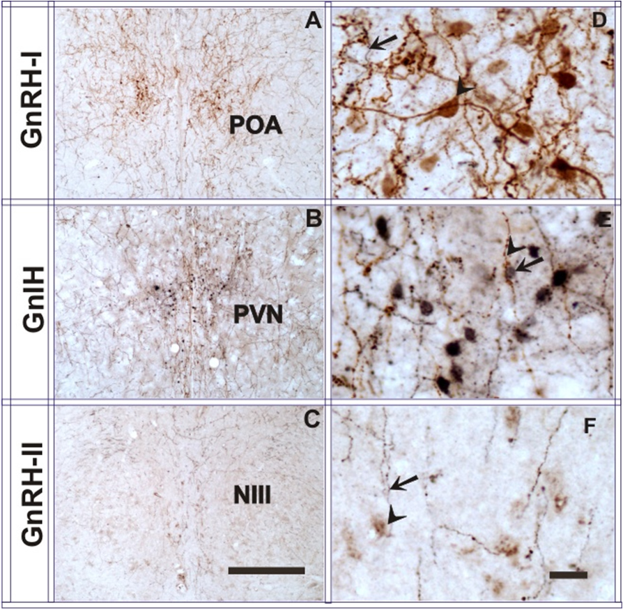 Localization of GnIH, GnRH- I and –II peptide by double label Immunohistochemistry