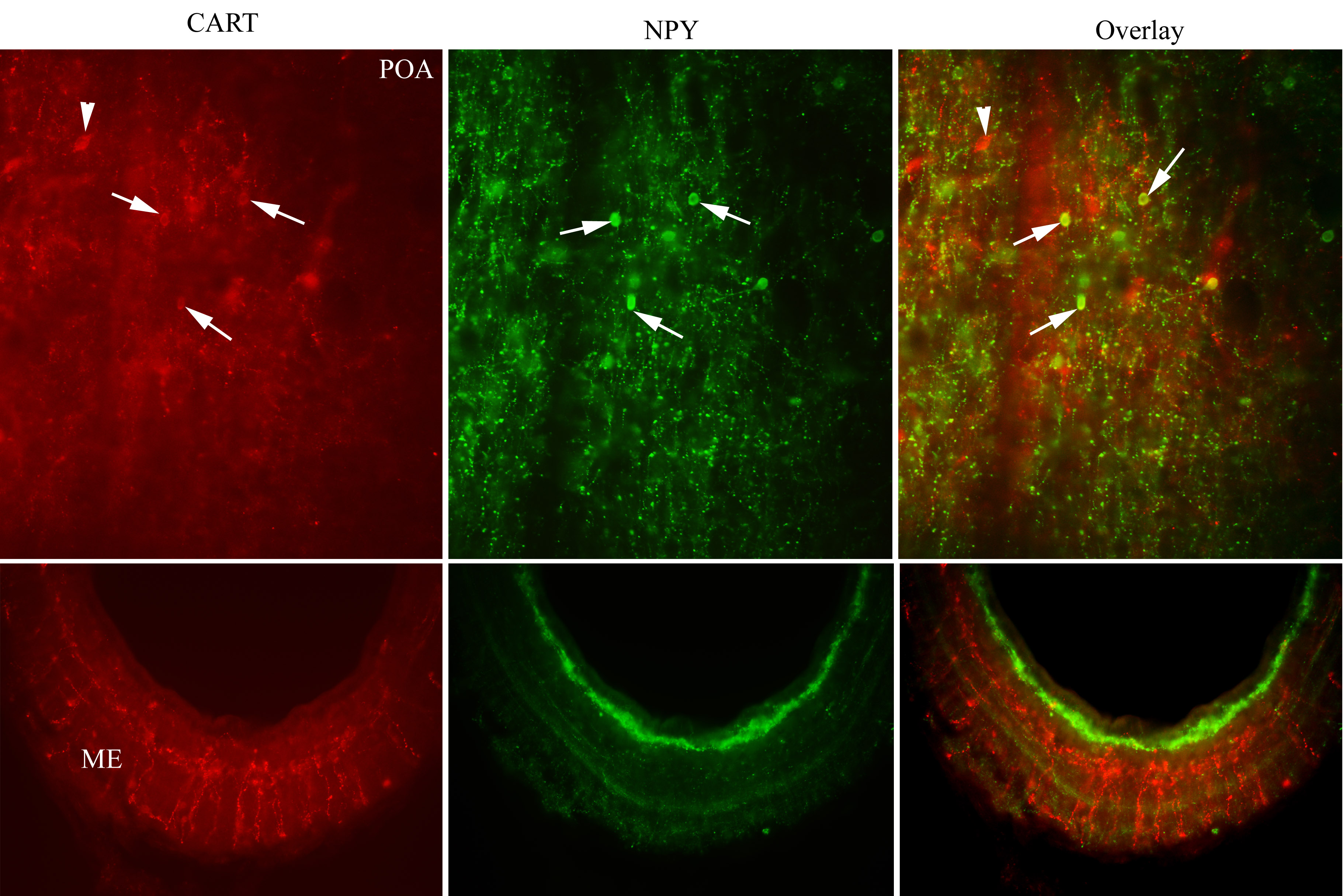 Fluorescent imaging of fluorescent proteins CART and NPY subcellular localization and their fusion expression